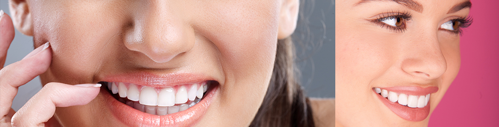 teeth straightening dentist walsall